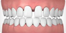 straight teeth model