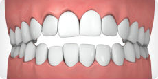 gapped teeth model
